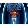 Лечение рака эндометрия (рака тела матки)  в Харбине